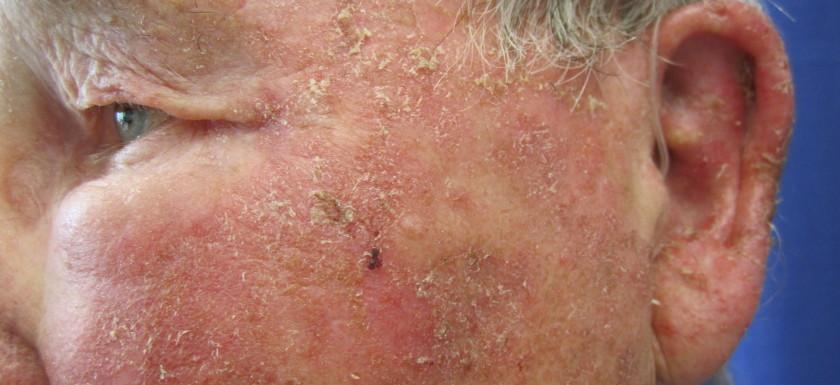 Actinic Keratosis Linia Skin Clinic
