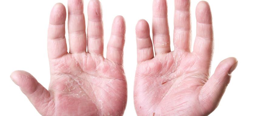Eczema & Dermatitis Treatment