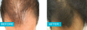 PRP Hair Loss YTreatment Before and After