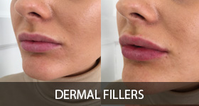 Dermal fillers for men before and after