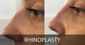 rihnoplasty-treatment
