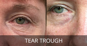 tear-through-treatment