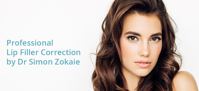 Lip Filler Dissolving & Correction