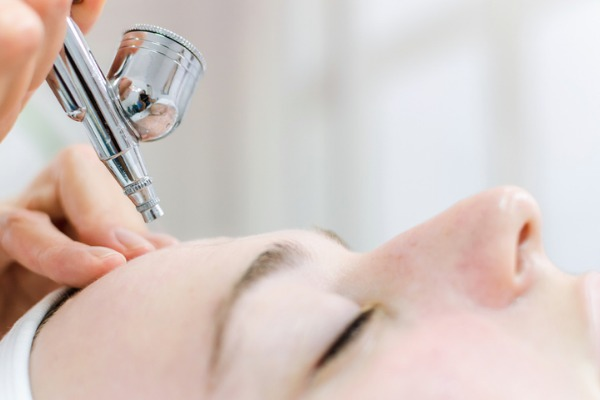 woman getting dermapen on forehead
