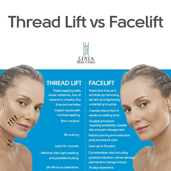 thread lift vs face lift infographic